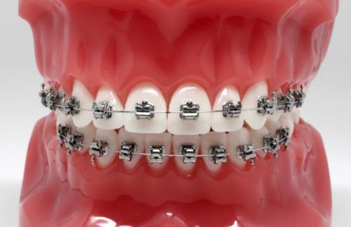 Брекет-система Damon: взвешенный выбор открытой улыбки
